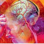 uzroci klaster glavobolje-150x150