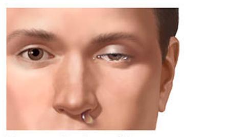 cluster-glavobolja hornerov sindrom